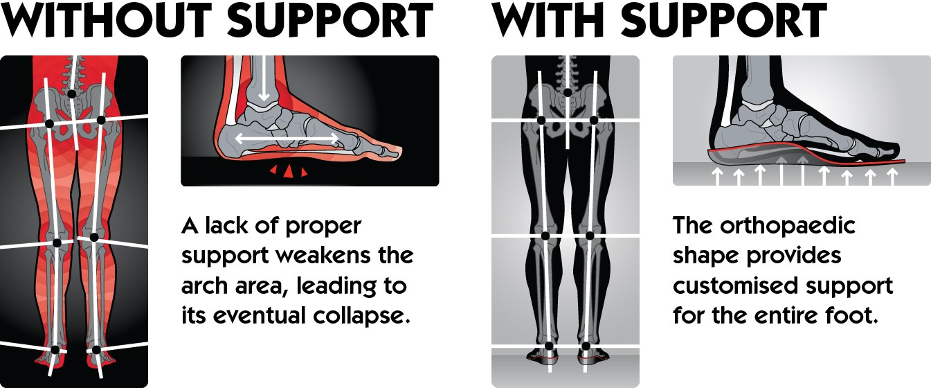 Orthotic Footwear Support Example